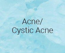 Acne/Cystic Acne